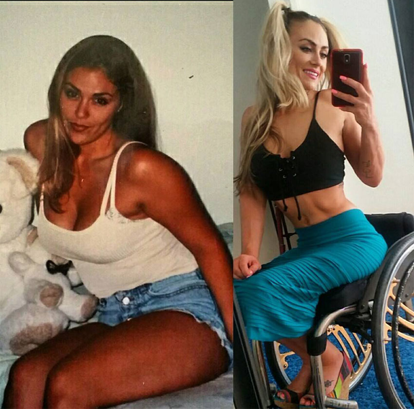 Tiphany Adams before her accident compared to how she looks now.