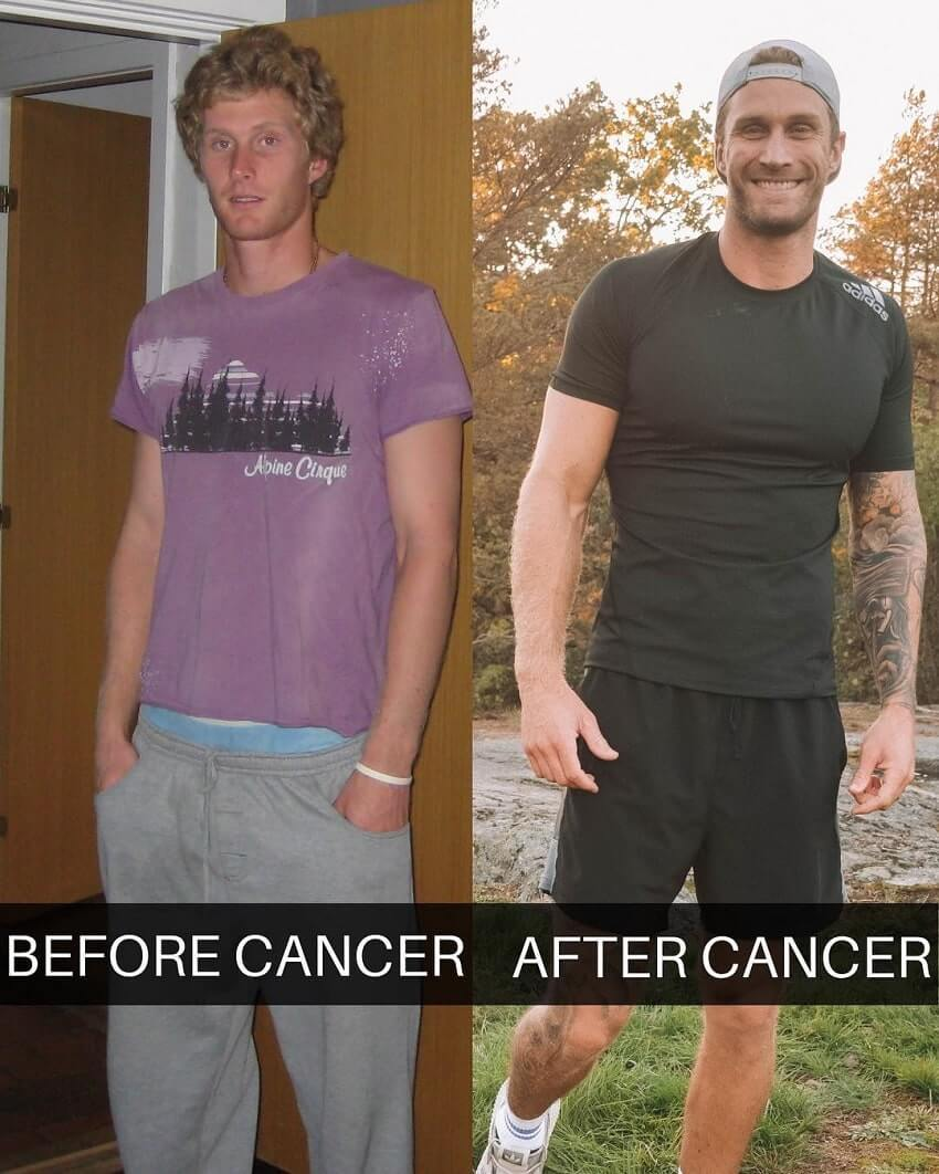 Matt Fox amazing body transformation before and after cancer