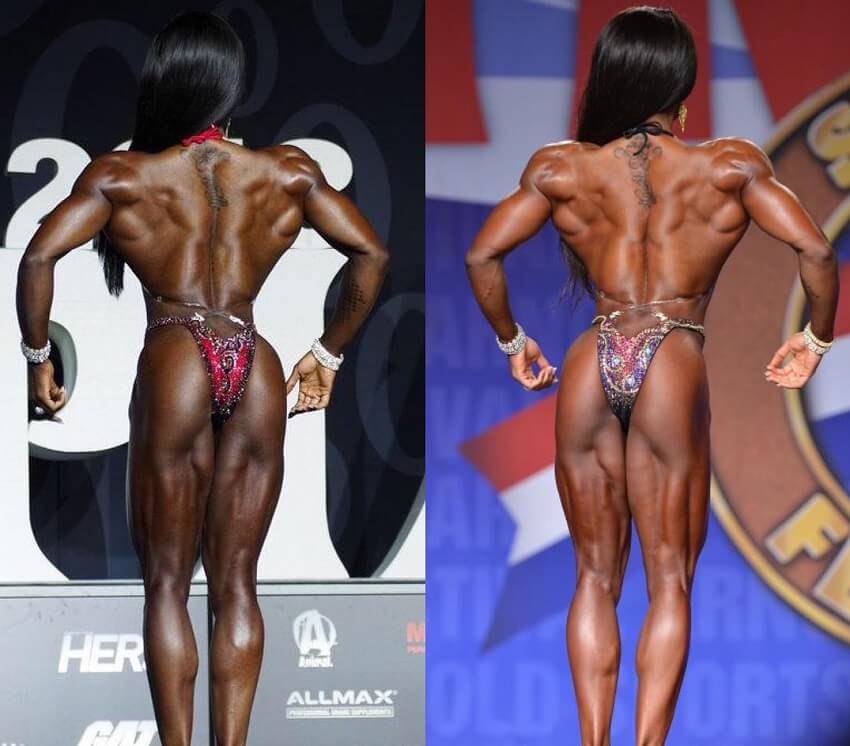 Cydney Gillon's back transformation before and after