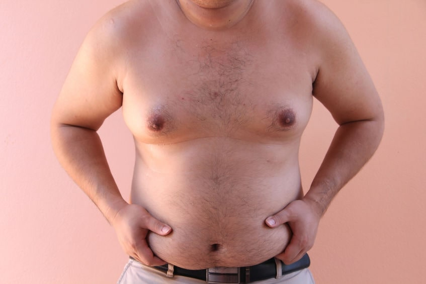 Obesity is one of the causes of low testerone levels in men
