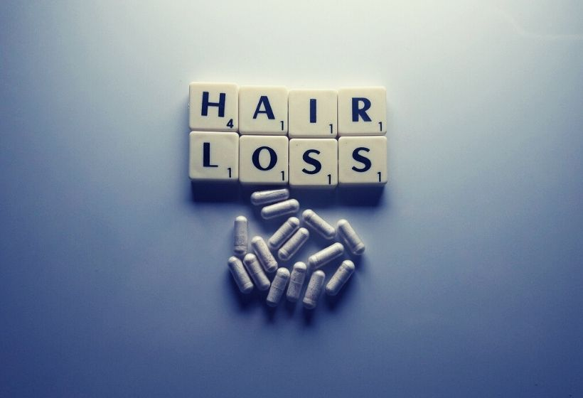 Testosterone and hair loss